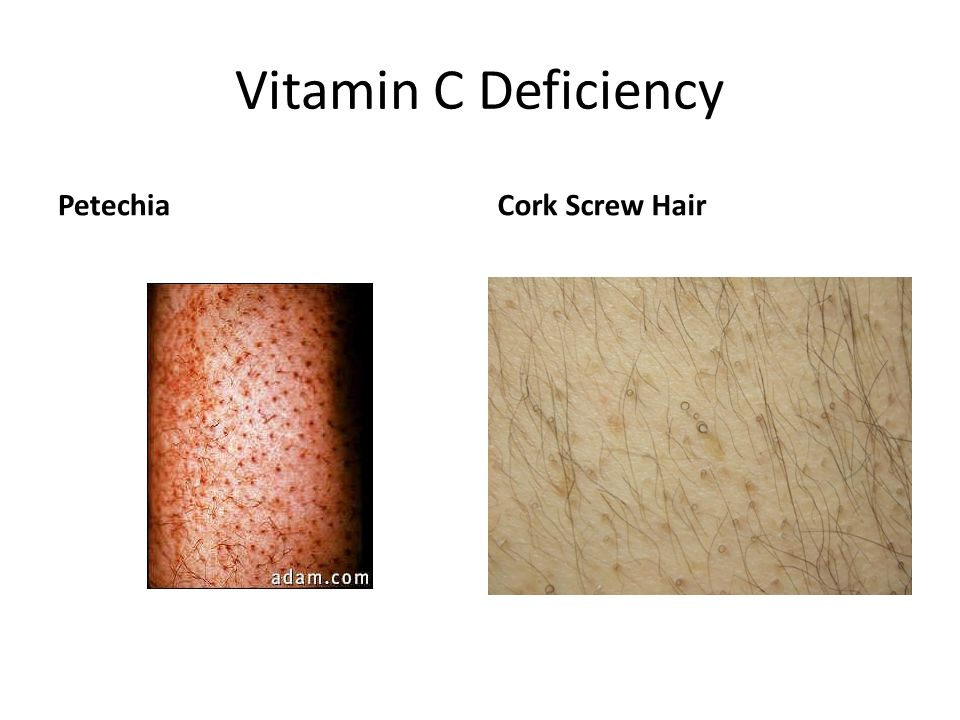 Vitamin C Deficiency Petechia Cork Screw Hair