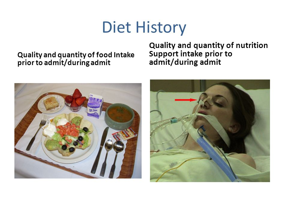 Diet History Quality and quantity of nutrition Support intake prior to admit/during admit.