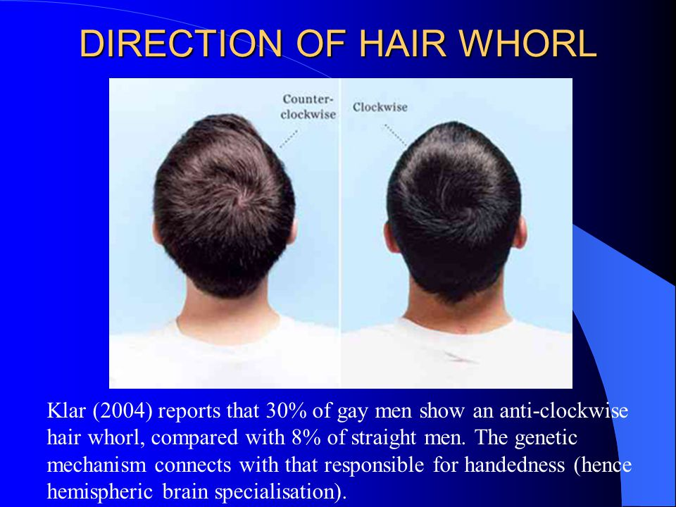 DIRECTION OF HAIR WHORL