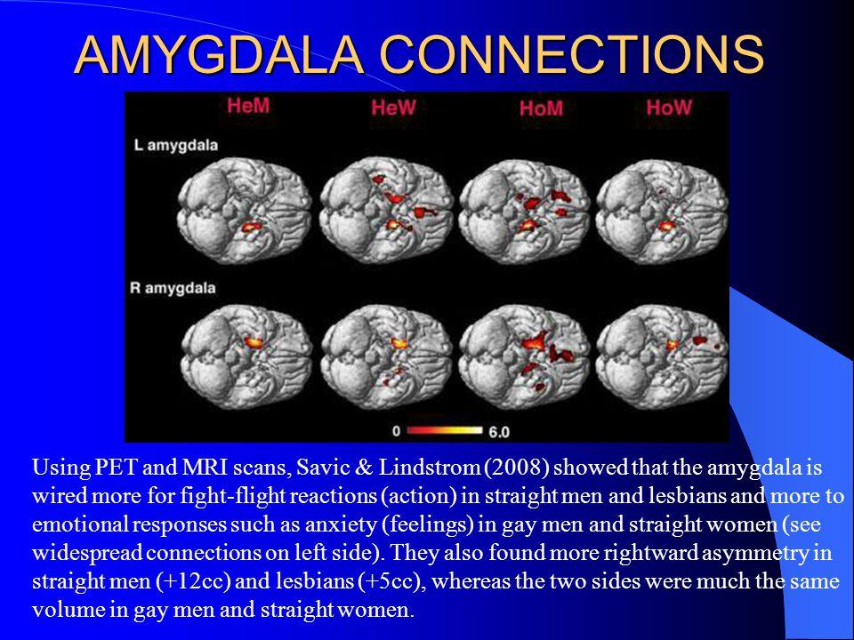 AMYGDALA CONNECTIONS