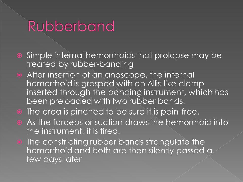 Rubberband Simple internal hemorrhoids that prolapse may be treated by rubber-banding.