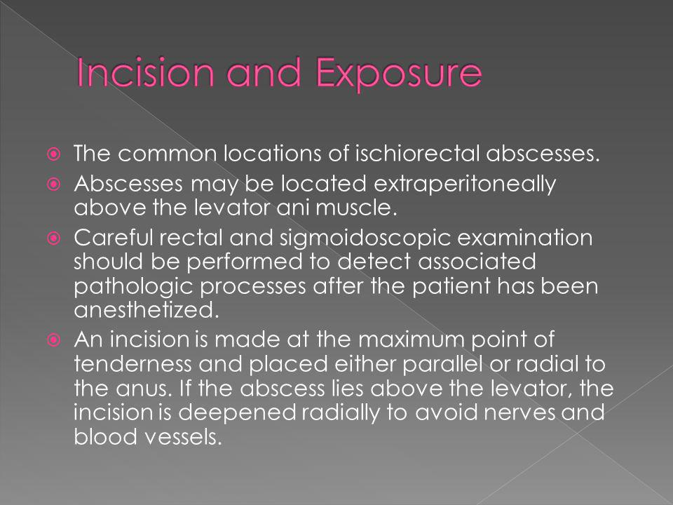 Incision and Exposure The common locations of ischiorectal abscesses.