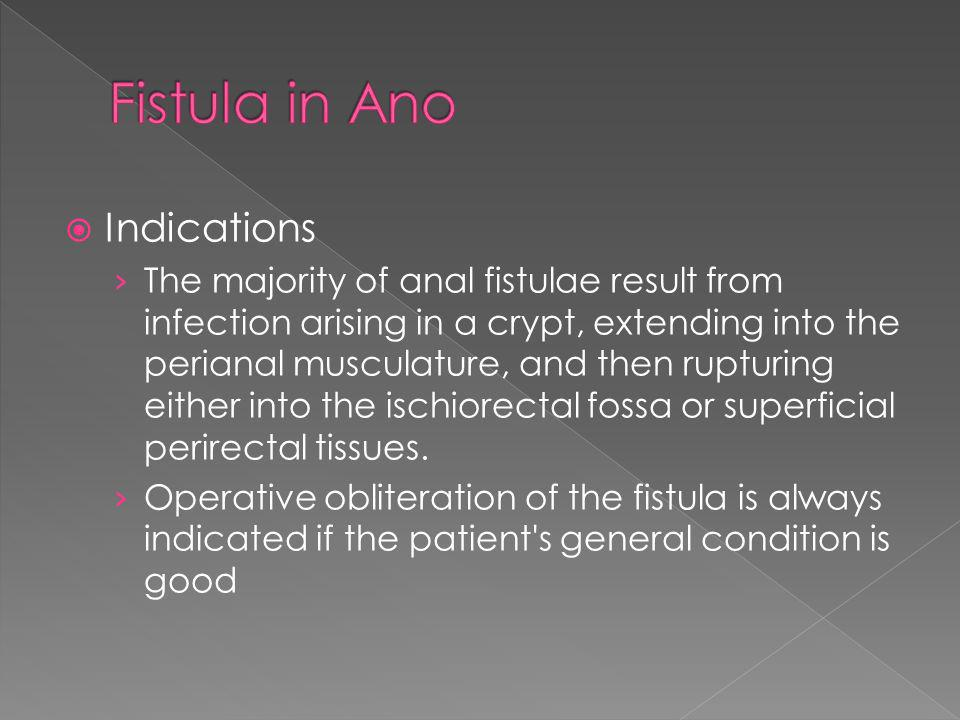 Fistula in Ano Indications