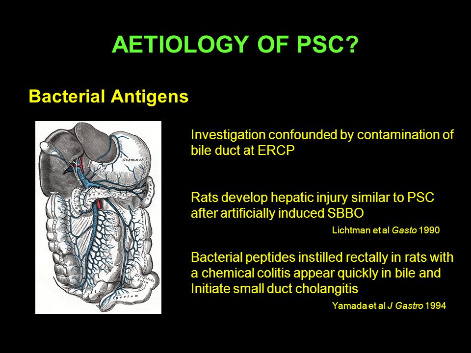 AETIOLOGY OF PSC Bacterial Antigens