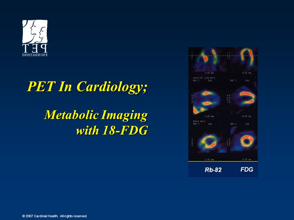 PET In Cardiology; Metabolic Imaging with 18-FDG