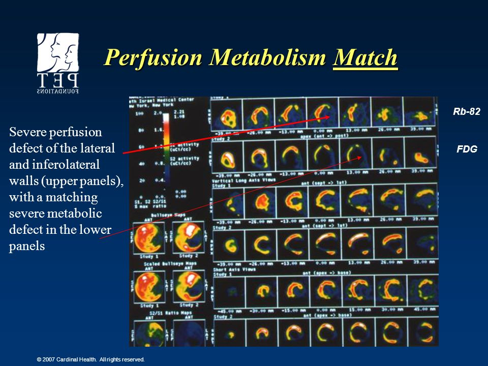 Perfusion Metabolism Match