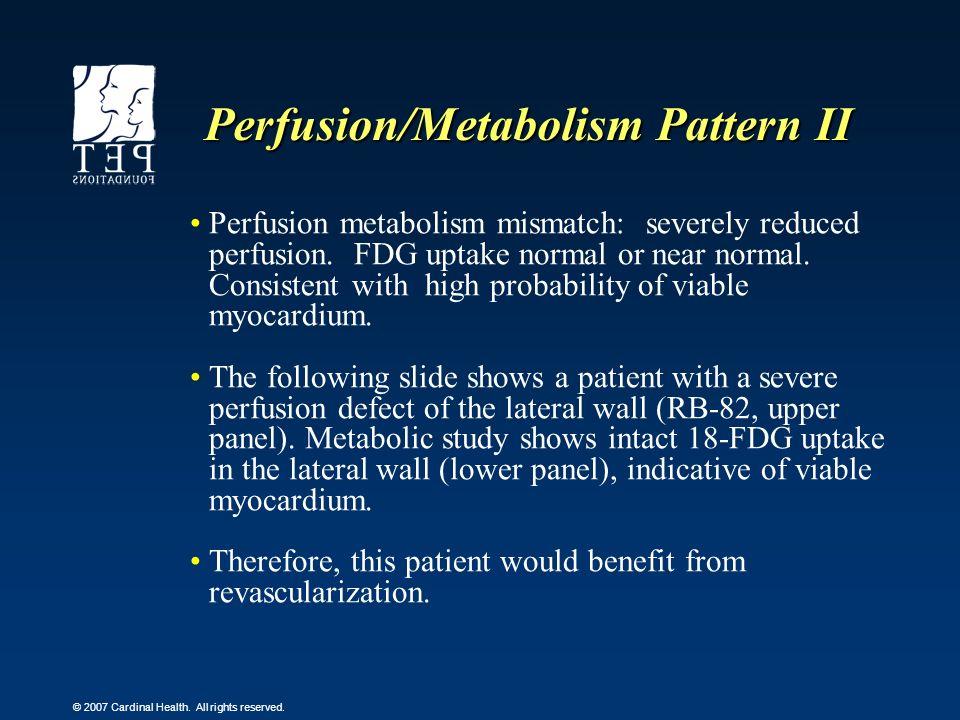 Perfusion/Metabolism Pattern II