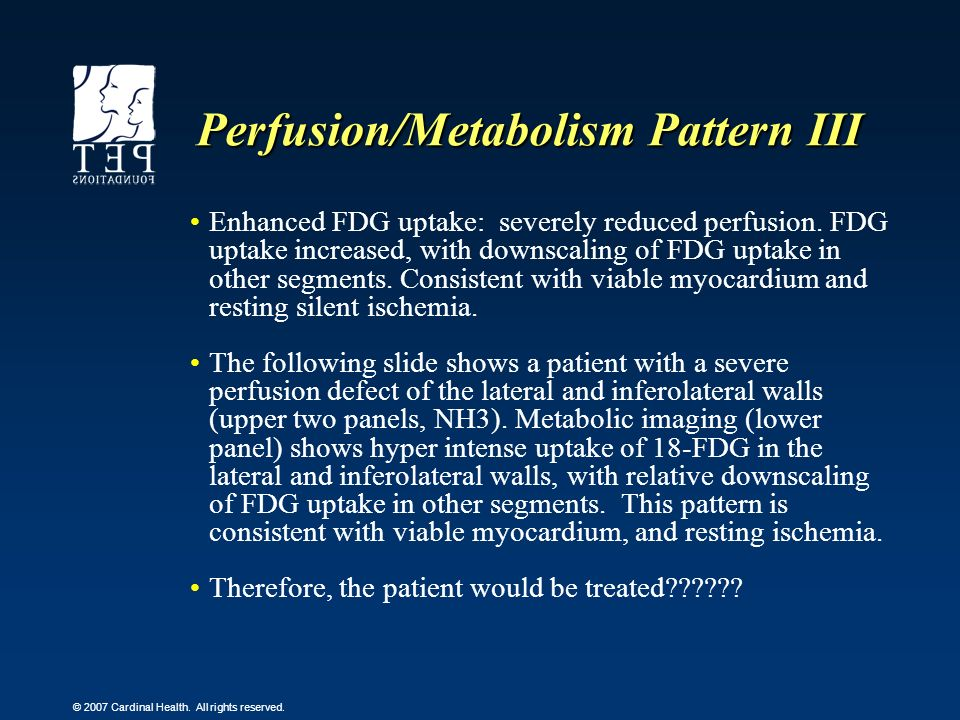 Perfusion/Metabolism Pattern III