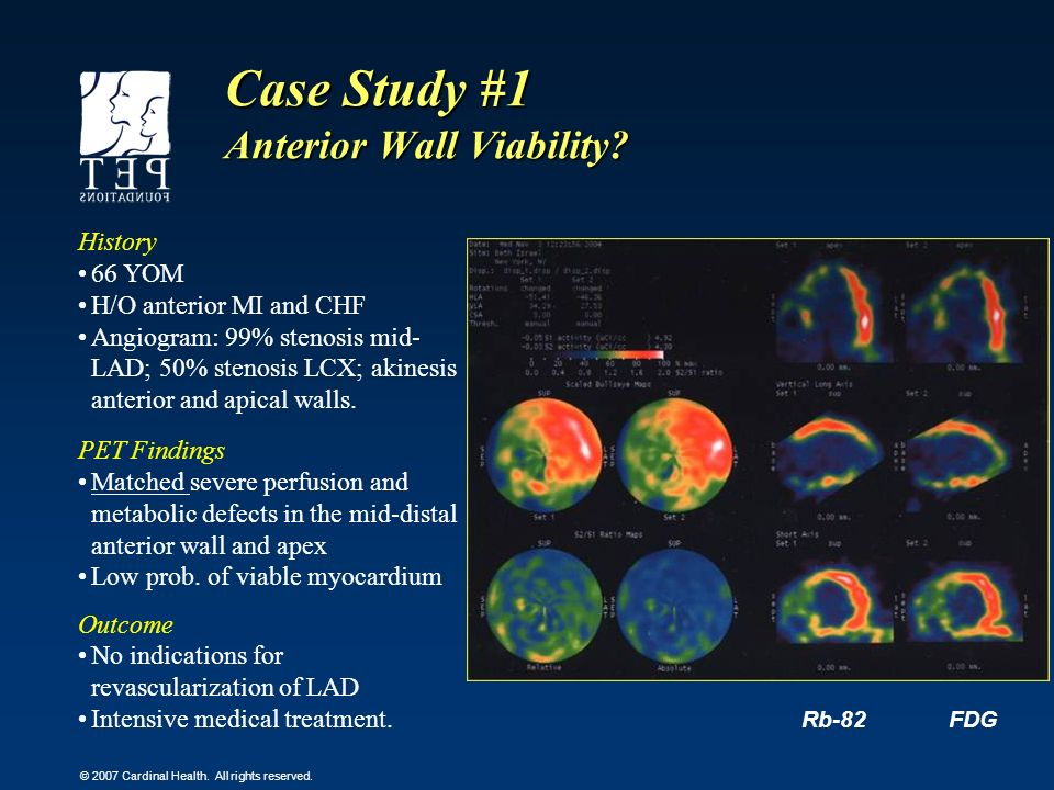 Case Study #1 Anterior Wall Viability