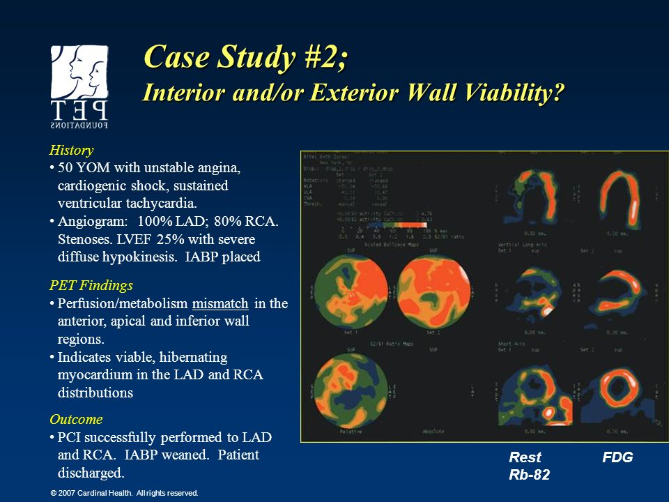 Case Study #2; Interior and/or Exterior Wall Viability