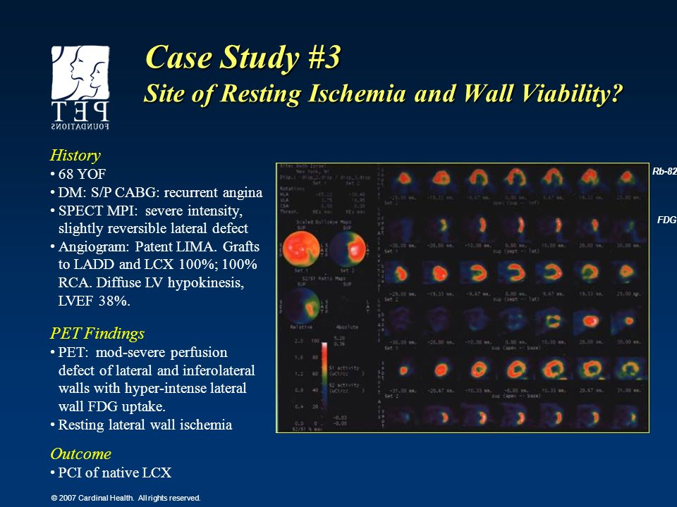 Case Study #3 Site of Resting Ischemia and Wall Viability