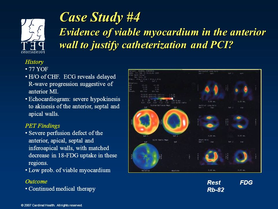 Case Study #4 Evidence of viable myocardium in the anterior wall to justify catheterization and PCI