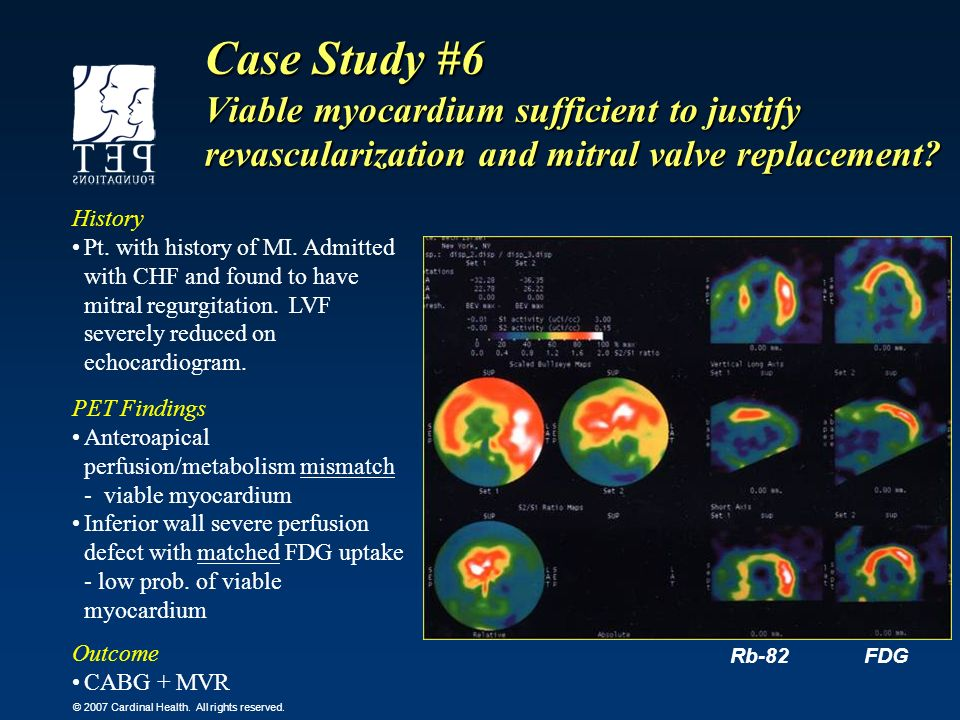 Case Study #6 Viable myocardium sufficient to justify revascularization and mitral valve replacement