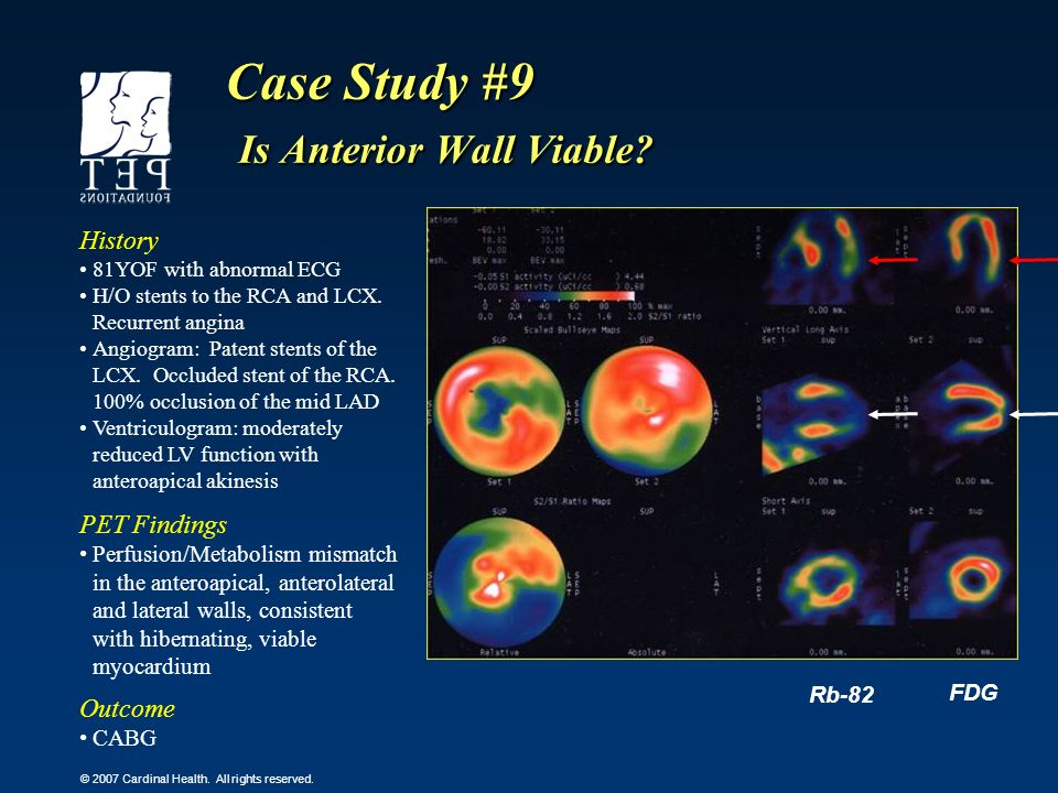 Case Study #9 Is Anterior Wall Viable