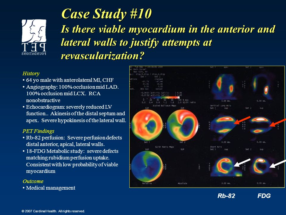 Case Study #10 Is there viable myocardium in the anterior and lateral walls to justify attempts at revascularization