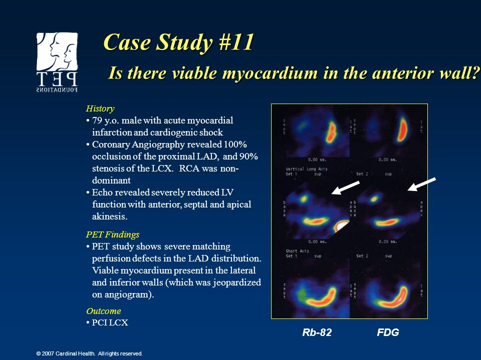 Case Study #11 Is there viable myocardium in the anterior wall