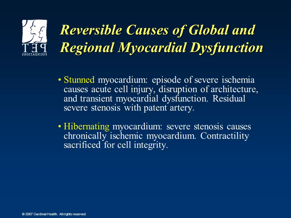 Reversible Causes of Global and Regional Myocardial Dysfunction