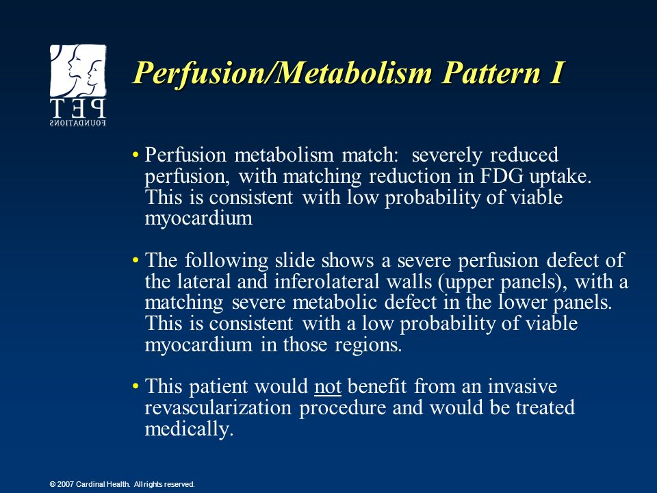 Perfusion/Metabolism Pattern I