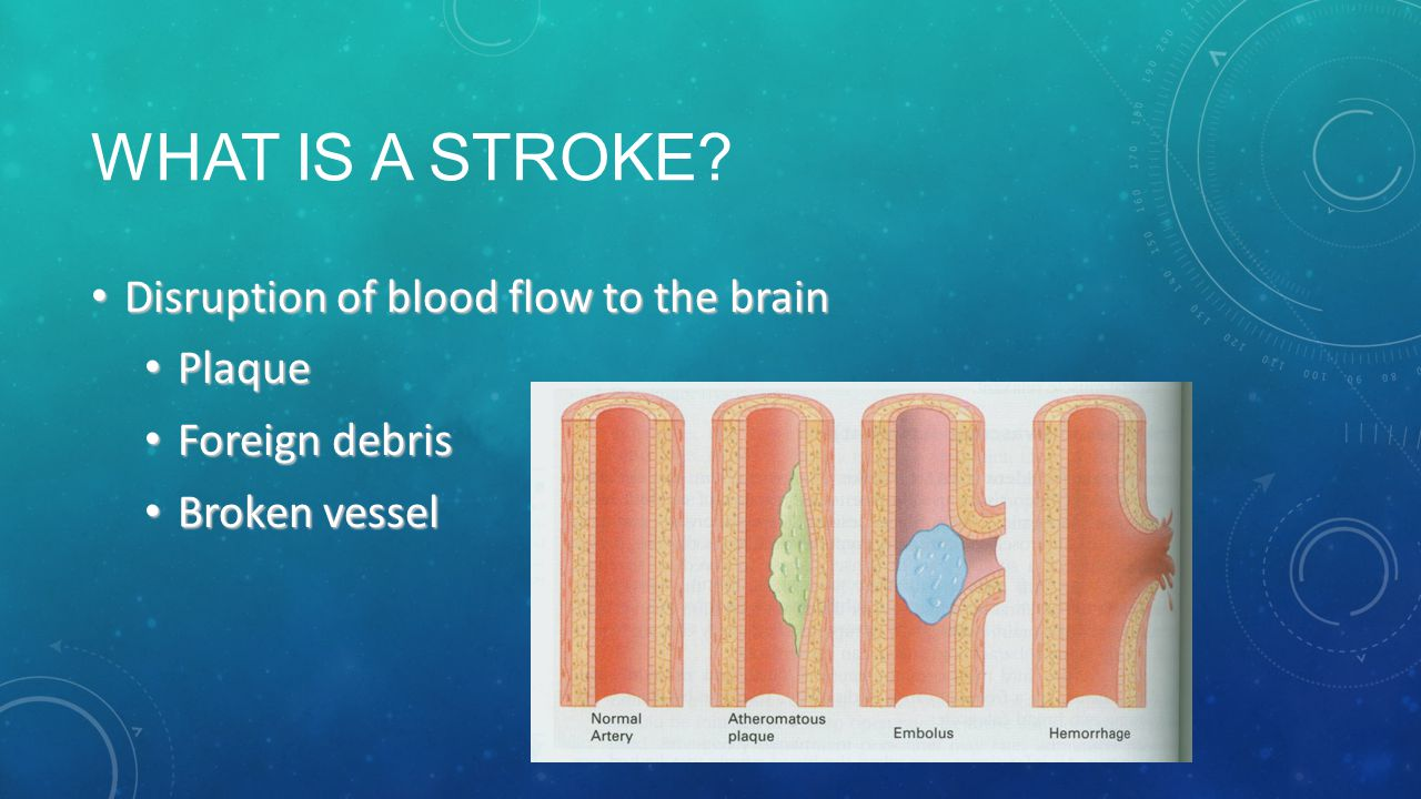 What is a stroke Disruption of blood flow to the brain Plaque