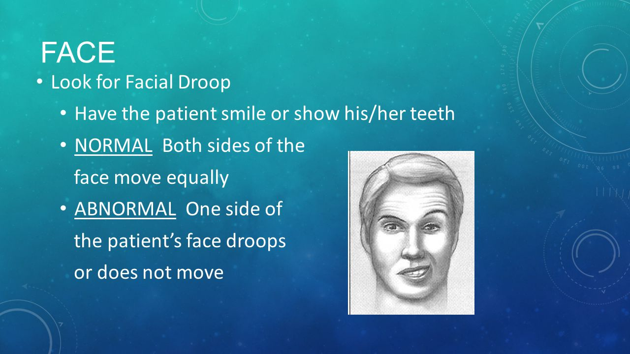 FACE Look for Facial Droop