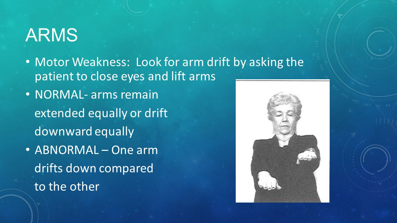 ARMS Motor Weakness: Look for arm drift by asking the patient to close eyes and lift arms. NORMAL- arms remain.
