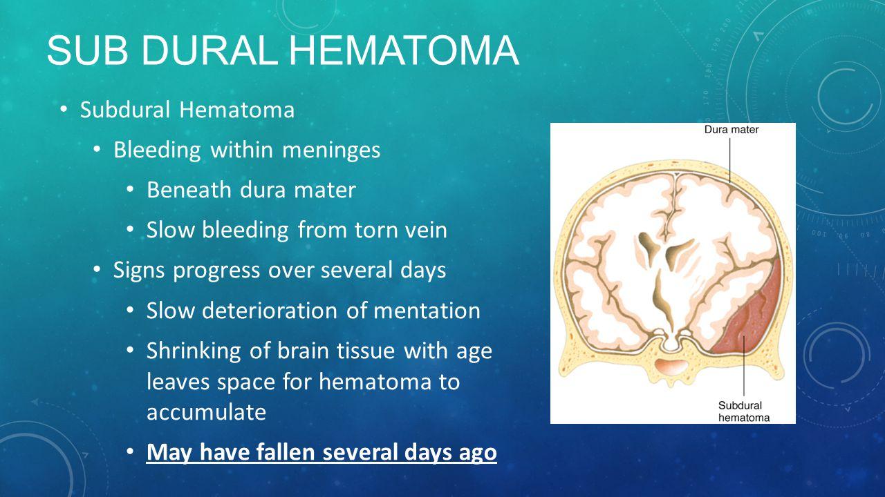 sub Dural Hematoma Subdural Hematoma Bleeding within meninges