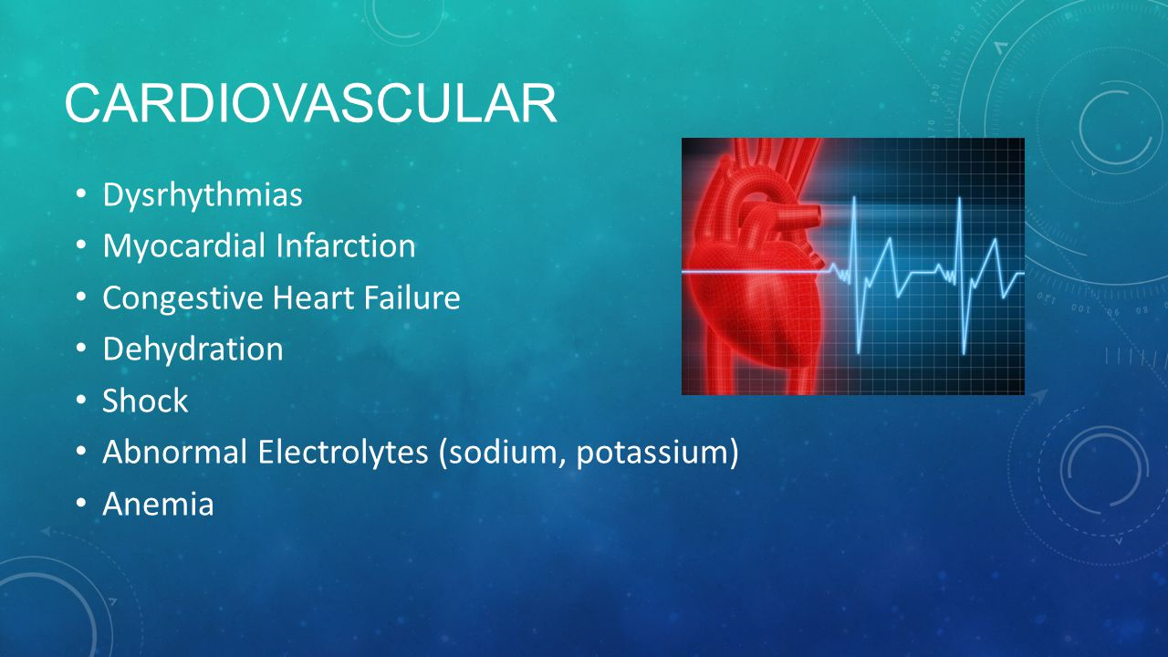Cardiovascular Dysrhythmias Myocardial Infarction