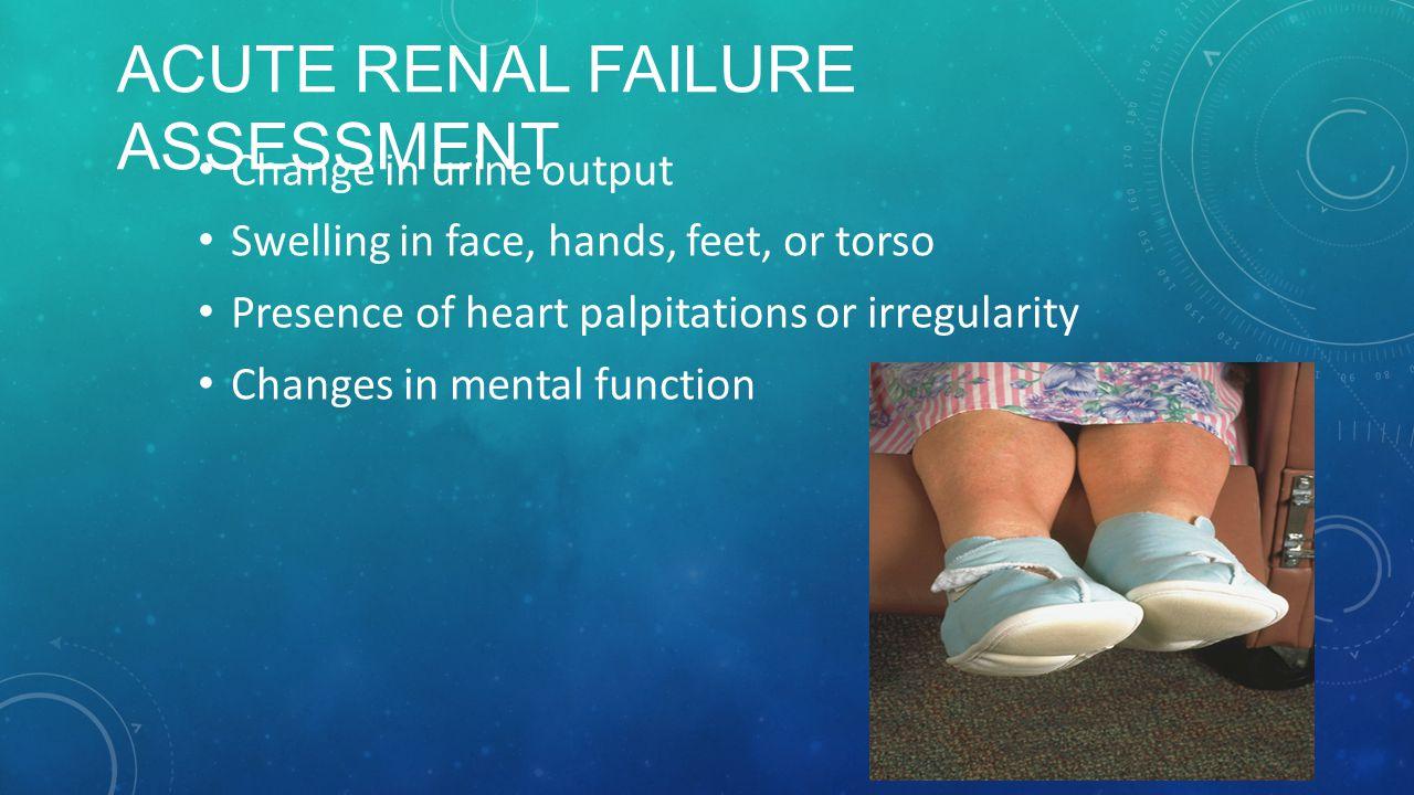 Acute Renal Failure Assessment