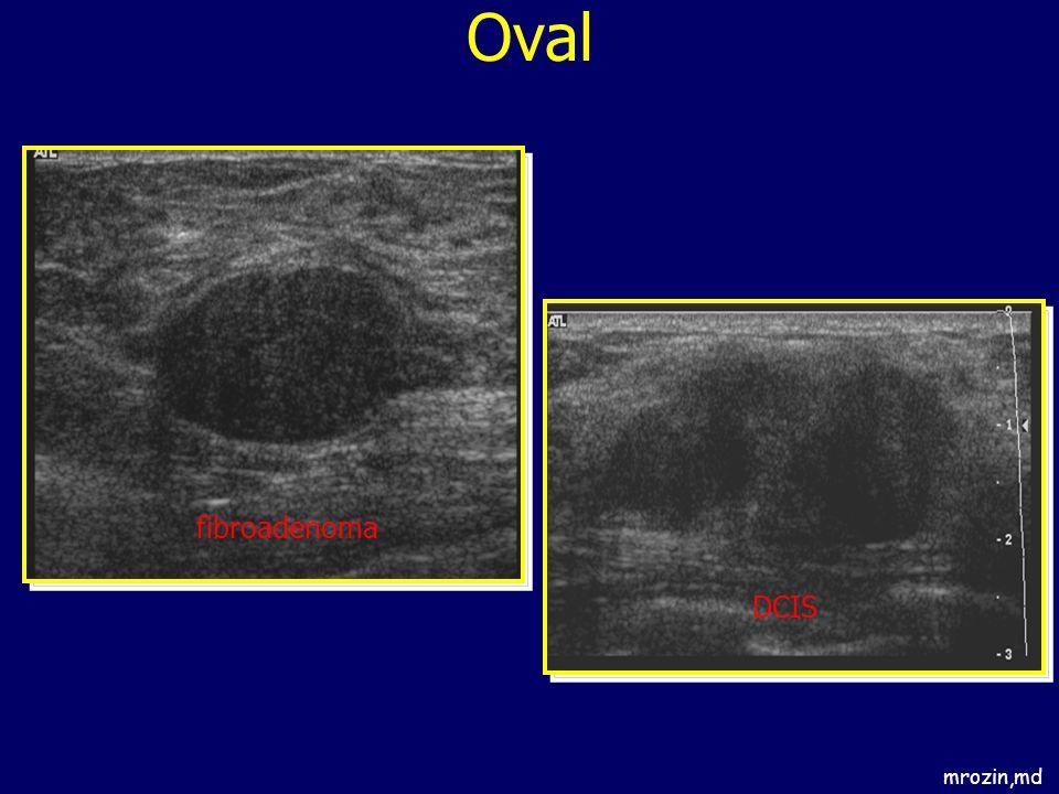 Oval fibroadenoma DCIS mrozin,md