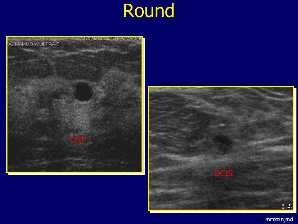 Round cyst DCIS mrozin,md