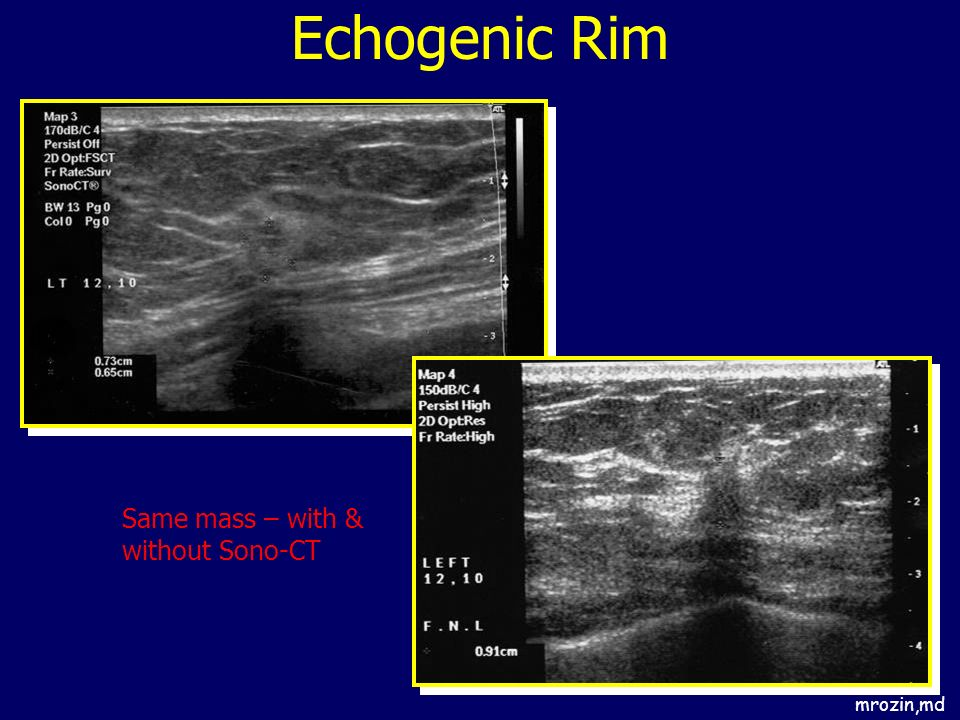 Echogenic Rim Same mass – with & without Sono-CT mrozin,md