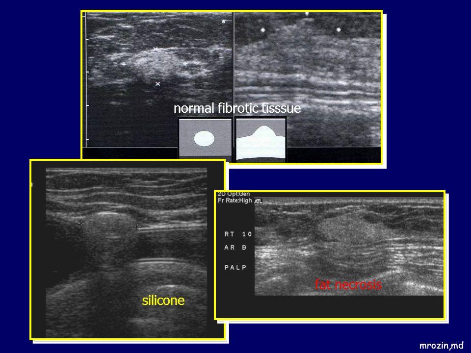 normal fibrotic tisssue