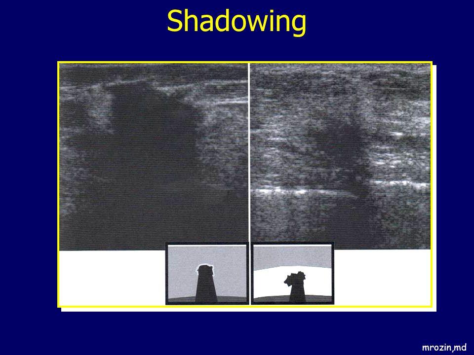 Shadowing mrozin,md