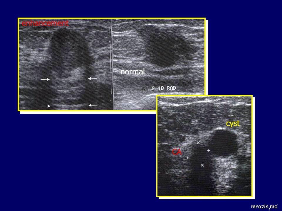 enhancement normal cyst CA mrozin,md