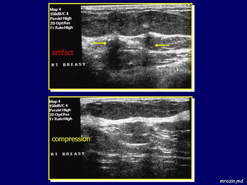artifact compression mrozin,md