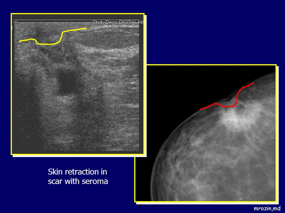 Skin retraction in scar with seroma