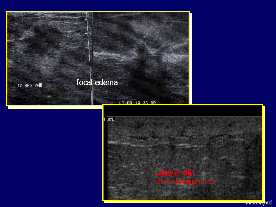 Edema with dilated lymphatics