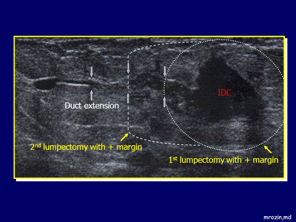 2nd lumpectomy with + margin