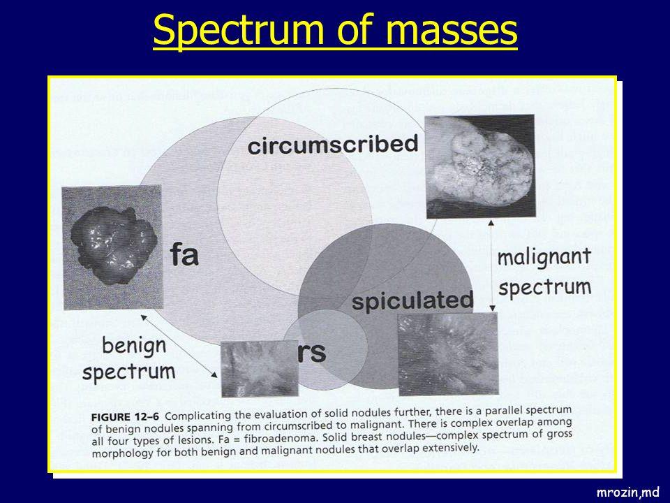 Spectrum of masses mrozin,md