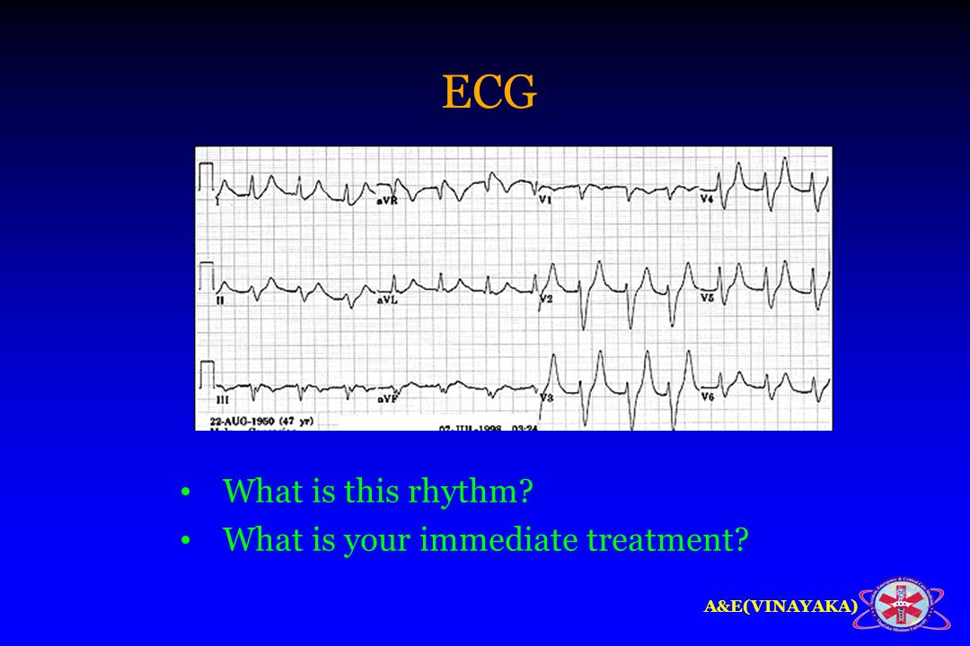 ECG What is this rhythm What is your immediate treatment