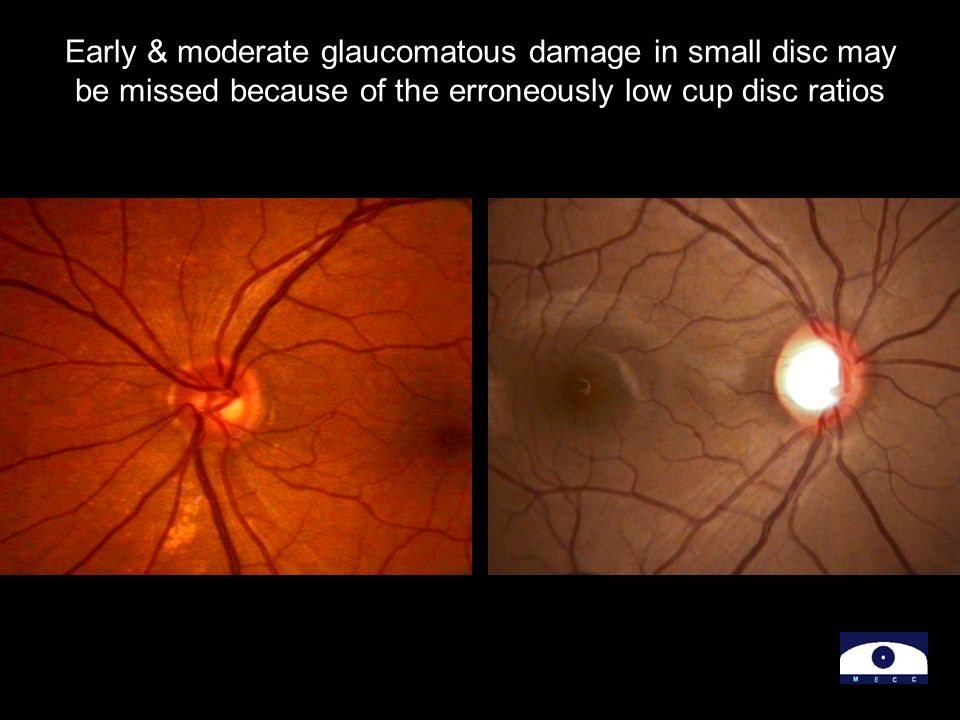 Early & moderate glaucomatous damage in small disc may be missed because of the erroneously low cup disc ratios