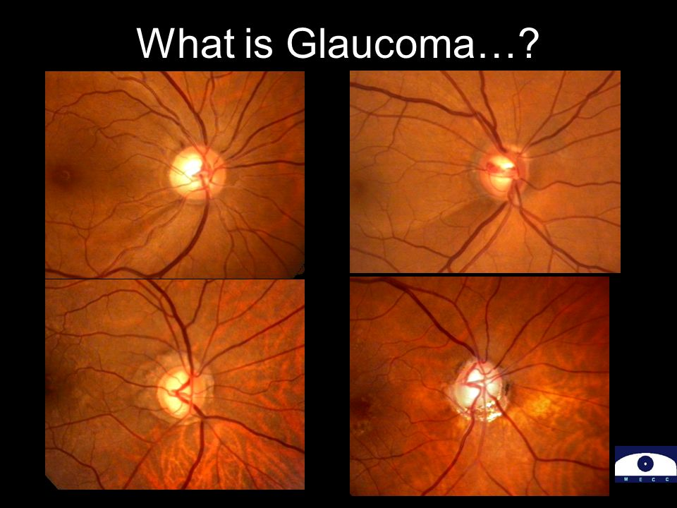 What is Glaucoma…