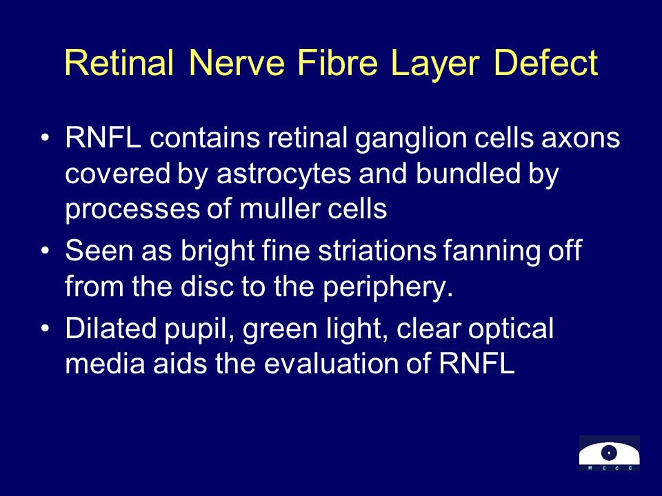 Retinal Nerve Fibre Layer Defect