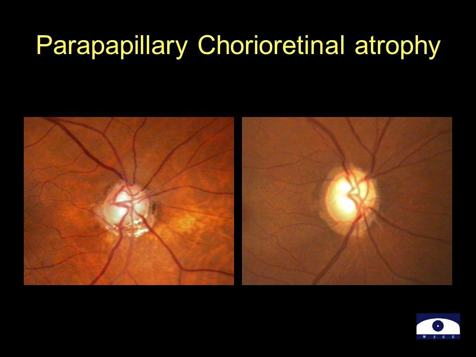 Parapapillary Chorioretinal atrophy