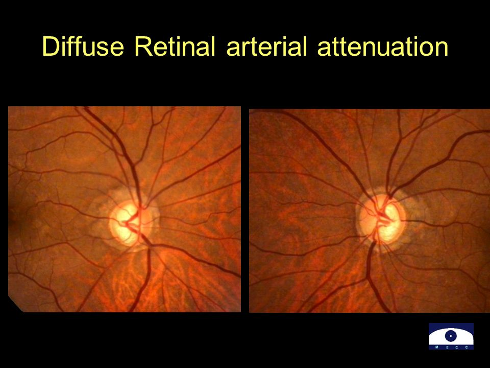Diffuse Retinal arterial attenuation