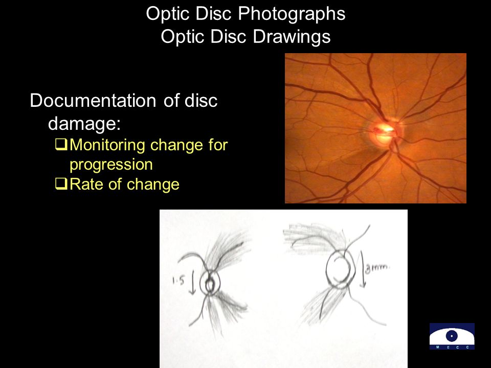 Optic Disc Photographs Optic Disc Drawings