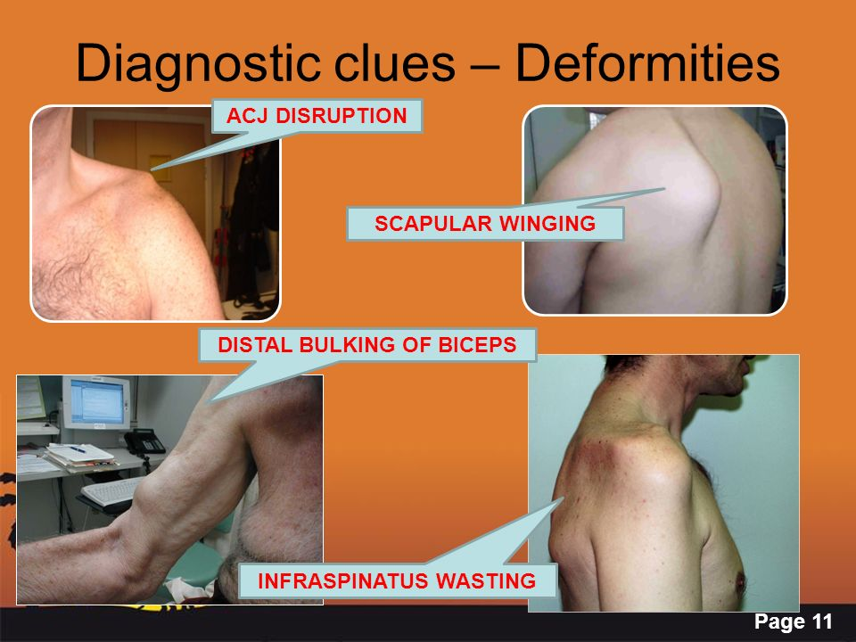 Diagnostic clues – Deformities