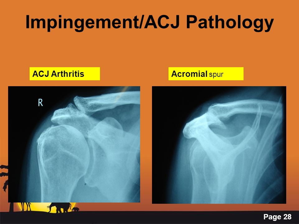 Impingement/ACJ Pathology
