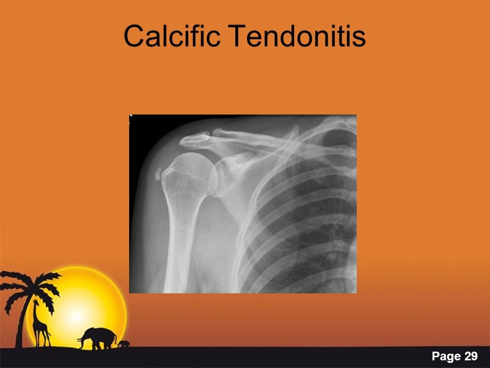 Calcific Tendonitis