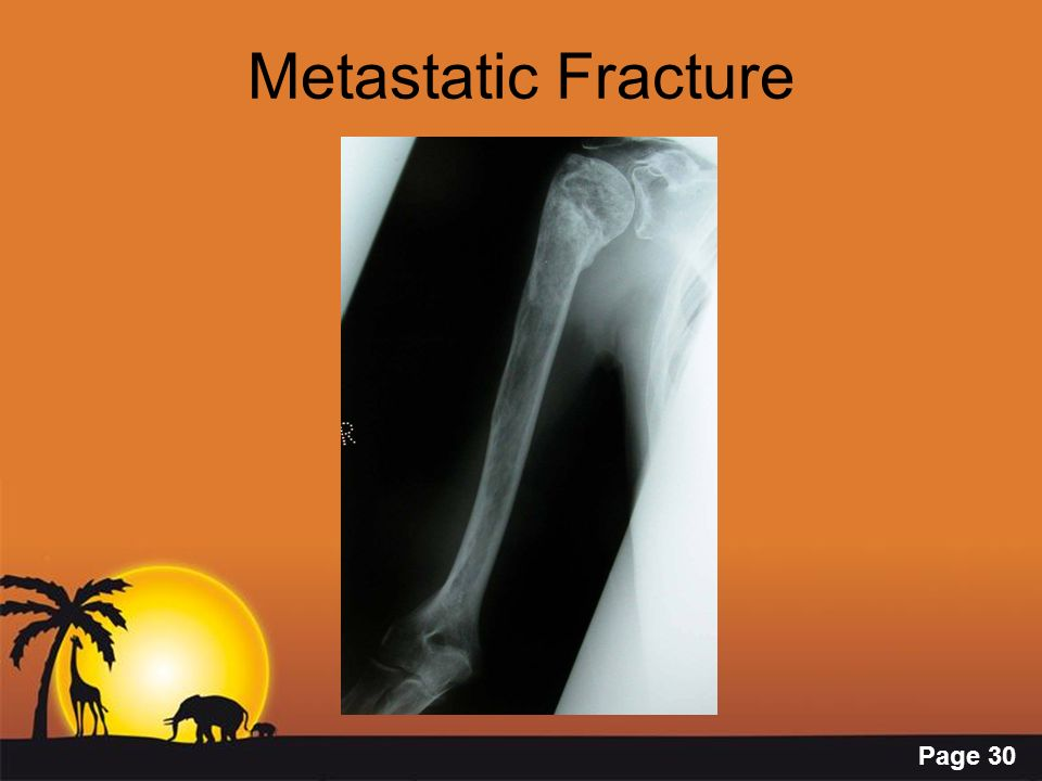 Metastatic Fracture